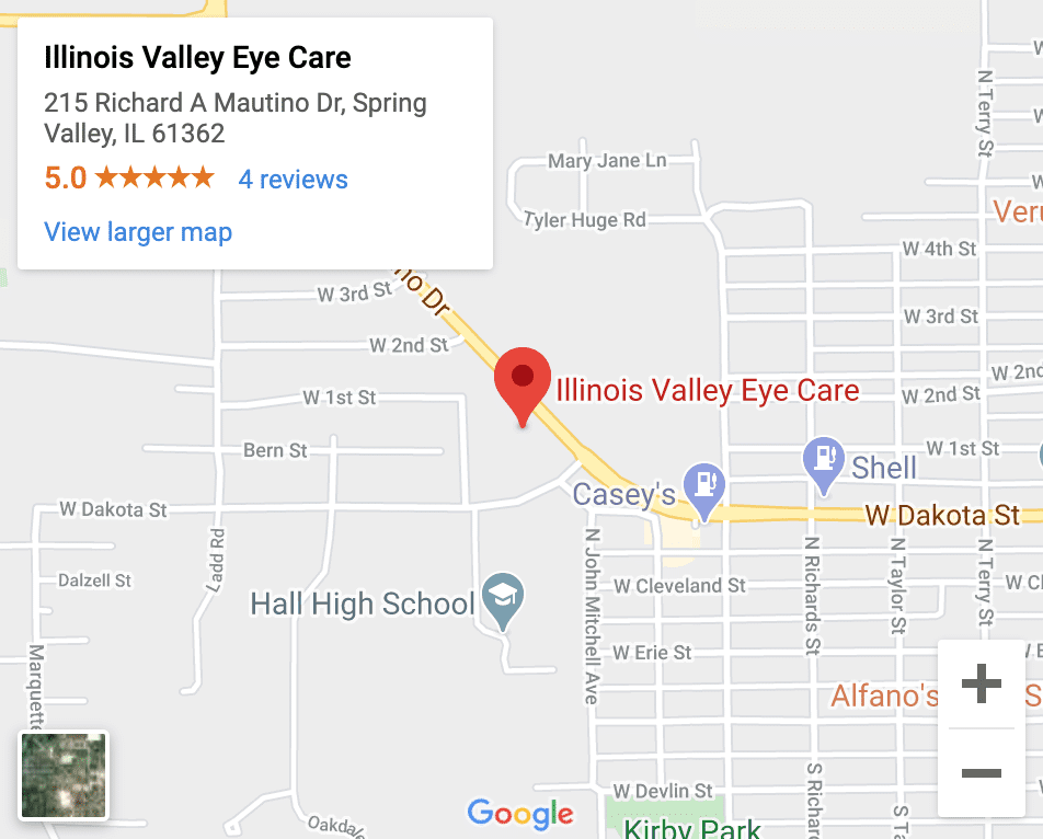 Eye Doctor Spring Valley IL